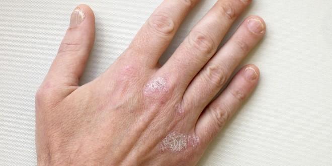Чесотка на ногтях